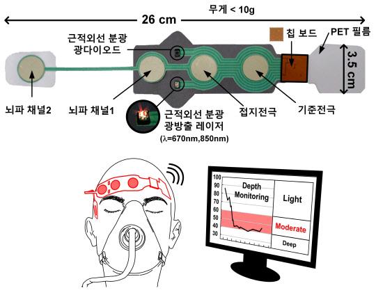 무선 딥러닝으로 수술 때 `마취 심도` 정확히 측정